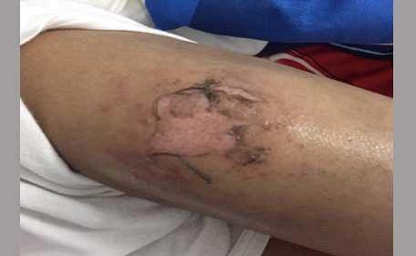 iPhone 6 взорвался у мальчика в кармане, нанеся серьезные ожоги