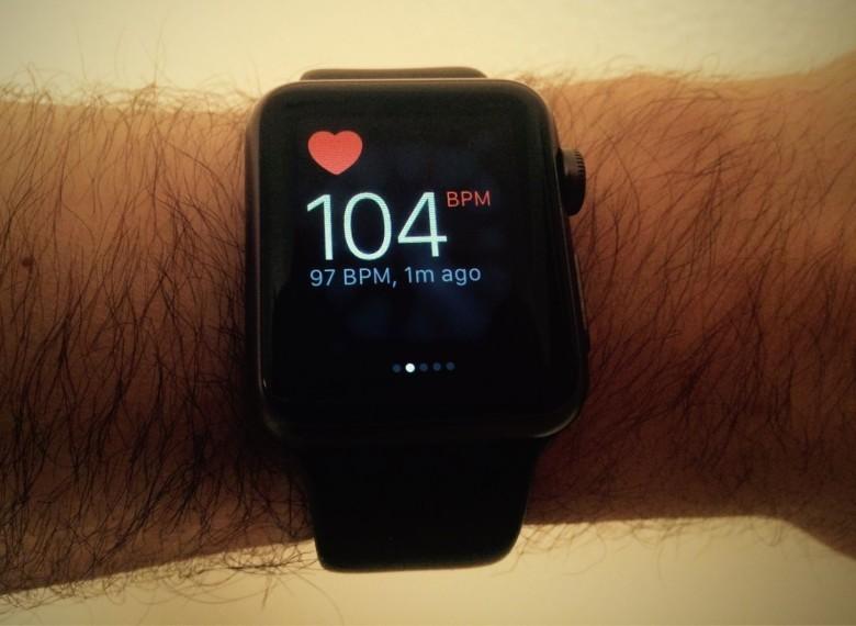 Apple Watch спасли жизнь подростку