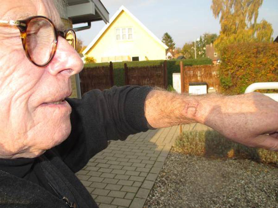 Датчанин получил ожоги руки при использовании Apple Watch